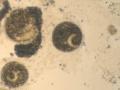 Ichtyophthirius.jpg